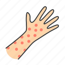 allergy, food, hives, medication, rash, reaction, skin icon