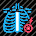 arthritis, disease, joint, rib, sternum, symptoms, treatments