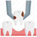 tooth, extraction, clinic, healthcare, medical