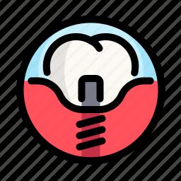 crown, dental, dentist, implants, medical, tooth icon