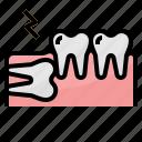 dental, healthcar, impacted, medical, tooth