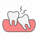 dental, impacted, stomatology, teeth, tooth, toothache, wisdom