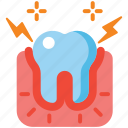 gingivitis, dental, tooth