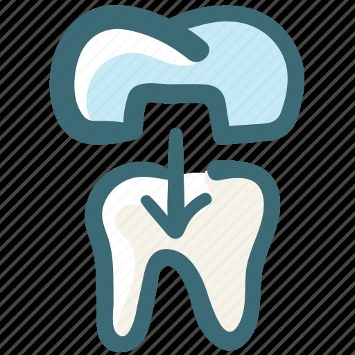 Dental, dental crown, dental treatment, dentist, doodle, tooth icon - Download on Iconfinder