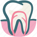 dental, dental treatment, dentist, gum, gums tooth, root canal, tooth