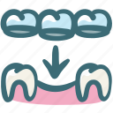 care, crown, dental, implant, prosthesis, surgery, tooth icon