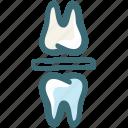 bite block, bite block bruxism, bruxism, dental, doodle