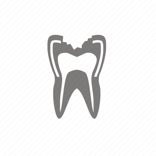 big, caries, cavity, pulpitis, tooth icon