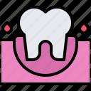 bleeding, blood, dental, dentist, gingiva, medicine, tooth
