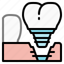 dental, dentist, implants, mouth, premolar, teeth, tooth icon