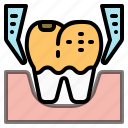 decay, dental, dentist, extraction, health, teeth, tooth