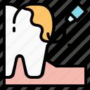 dental, dentist, health, scalin, teeth, tooth