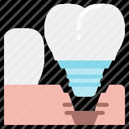 dental, dentist, implants, mouth, premolar, teeth, tooth icon