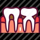 inflammation, periodontal, disease