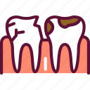 teeth, mouth, caries
