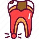 inflammation, pulpitis, tooth