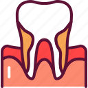 periodontitis, inflammation, disorder