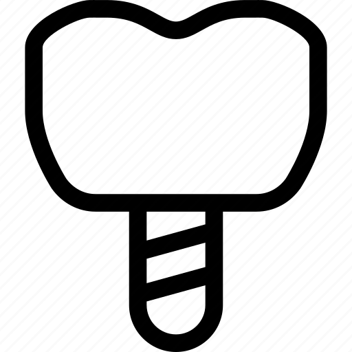 Dental, dentist, implant, inplant, medical, teeth icon - Download on Iconfinder