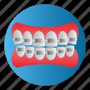 braces, dental, diseases, teeth, treatment