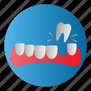 dental, diseases, tooth broken, treatment