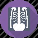 medical, radiology, radioscopy, ribs, xray