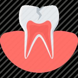 cavity, dental, dentist, dentistry, medical, teeth, tooth icon