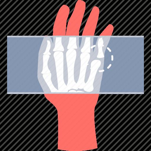 dicom, hand, health, healthcare, medical, x-ray, xray icon
