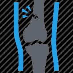broken leg, human leg, injury, orthopedics icon