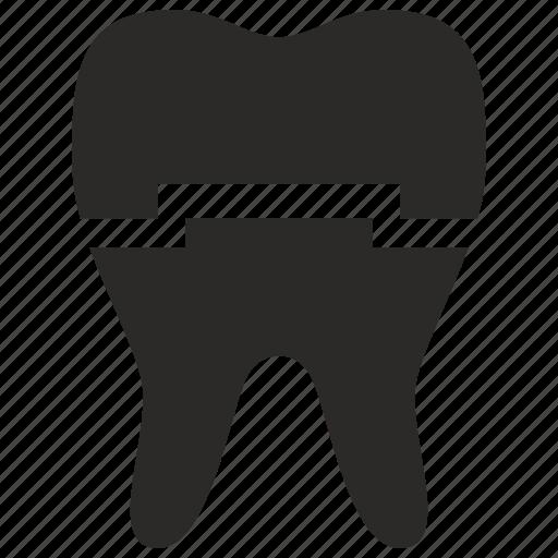 dental, implant, implantant, medicine, tooth icon