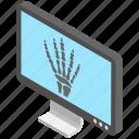 diagnosis, hand xray, radiation, radiography, x ray