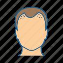 alopecia, balding, baldness, declining, hair, loss, testosterone icon