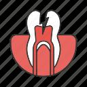 ache, hurt, pain, stomatology, teeth, tooth, toothache