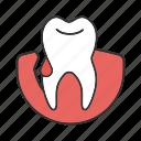blood, dental, gingivitis, gum bleeding, periodontitis, teeth, tooth icon