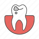 caries, dental, disease, gum, stomatology, teeth, tooth icon