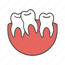 crooked teeth, dental, malocclusion, oral cavity, stomatology, teeth, tooth icon