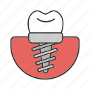 crown, dental implant, endosseous, implant, prosthesis, stomatology, tooth