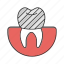 dental crown, implant, prosthesis, restoration, stomatology, teeth, tooth icon