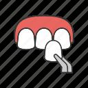 ceramic, dental crown, stomatology, teeth, tooth, veneer, veneers